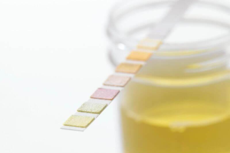 Stav ketózy lze zjistit podle hladiny ketolátek v krvi.