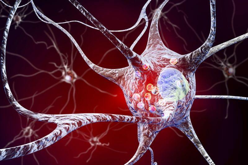 Keto dieta se nejčastěji spojuje s léčbou epilepsie.